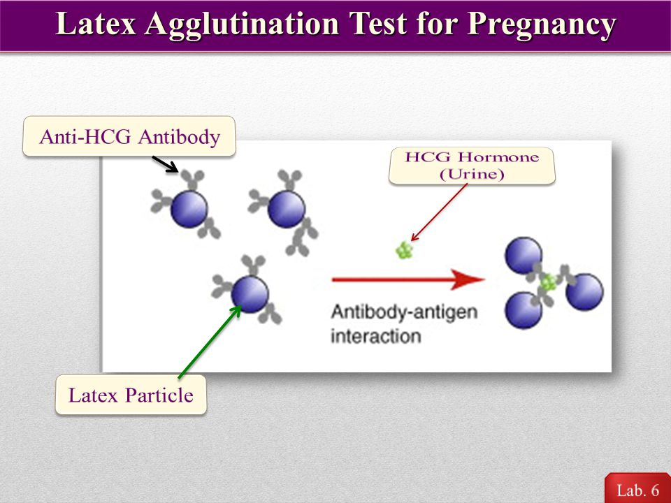 Latex Agglutination Test for Pregnancy