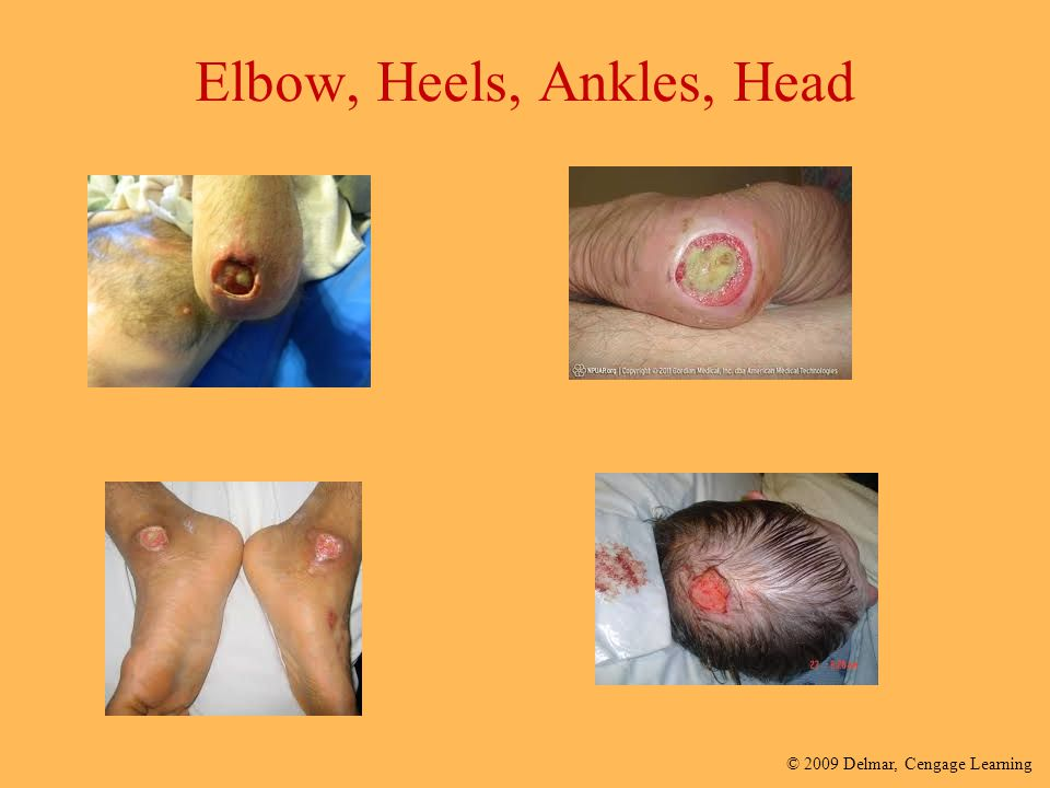 Elbow, Heels, Ankles, Head
