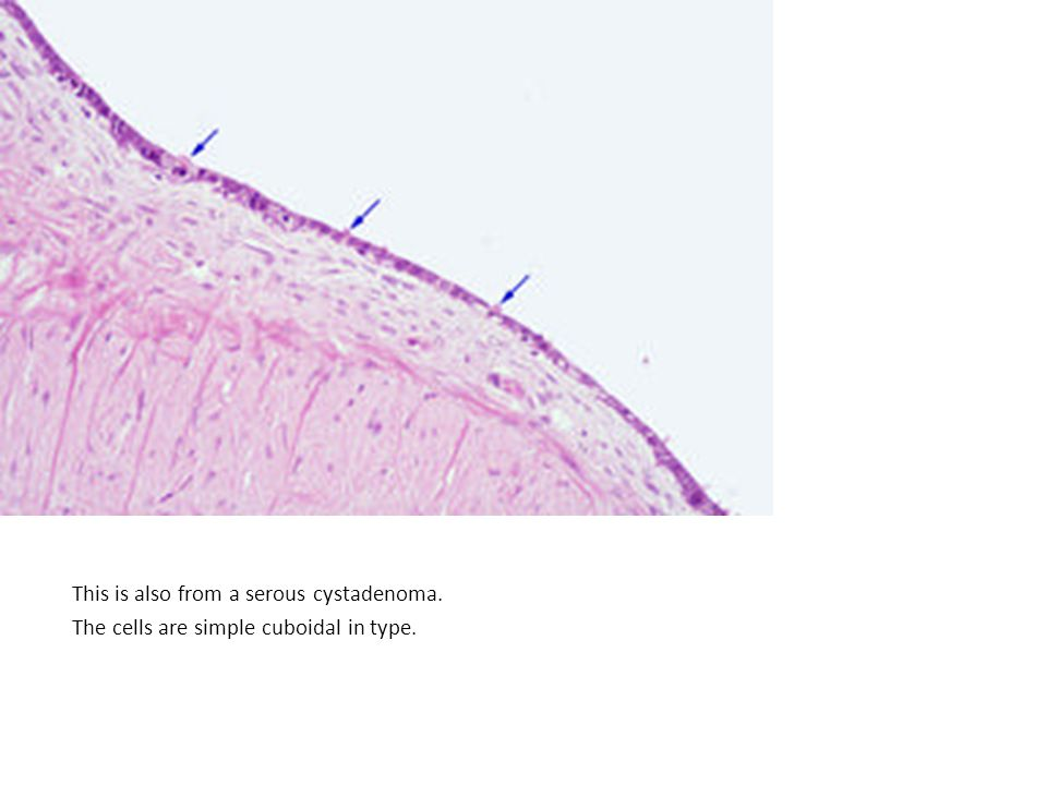 This is also from a serous cystadenoma