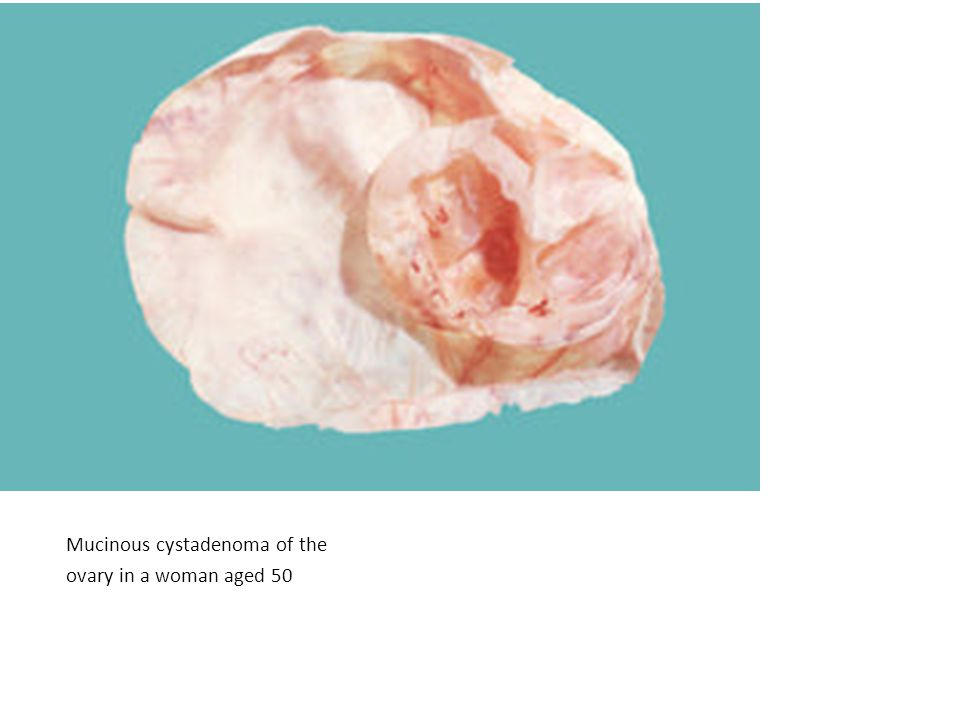 Mucinous cystadenoma of the ovary in a woman aged 50