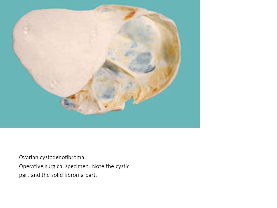 Ovarian cystadenofibroma. Operative surgical specimen