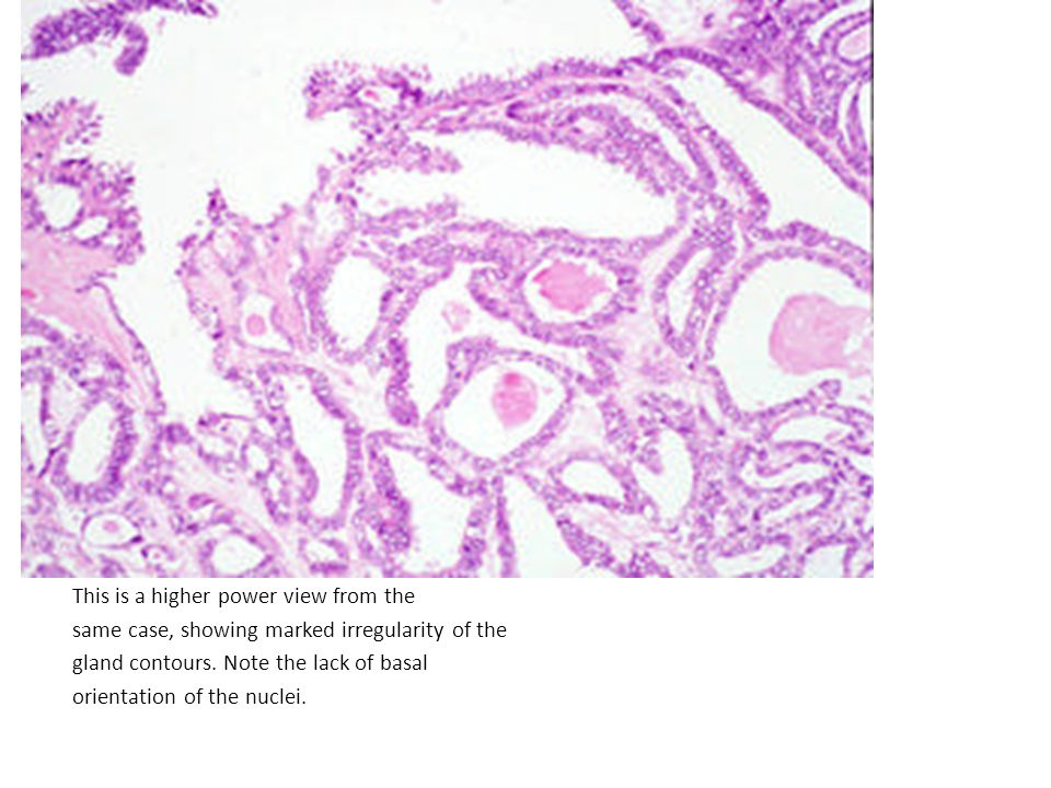 This is a higher power view from the same case, showing marked irregularity of the gland contours.