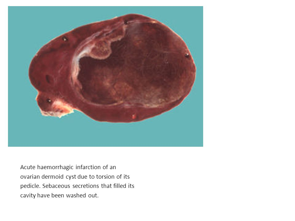 Acute haemorrhagic infarction of an ovarian dermoid cyst due to torsion of its pedicle.