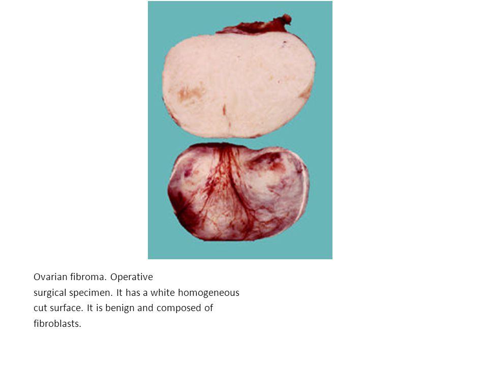 Ovarian fibroma. Operative surgical specimen