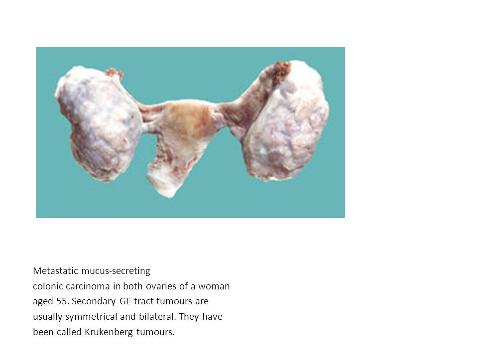 Metastatic mucus-secreting colonic carcinoma in both ovaries of a woman aged 55.