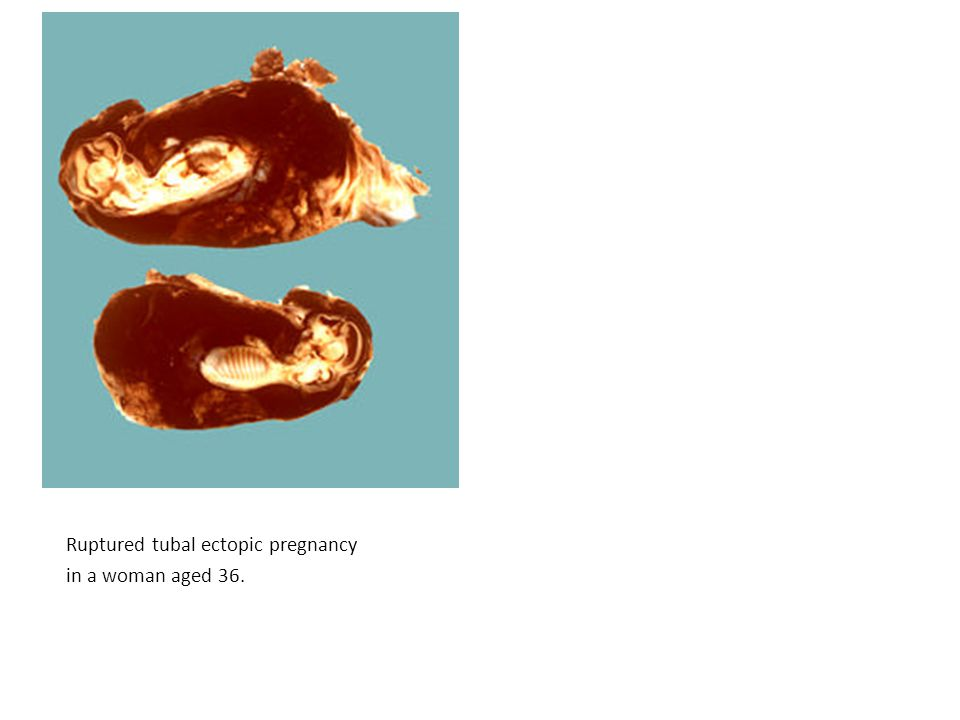 Ruptured tubal ectopic pregnancy in a woman aged 36.