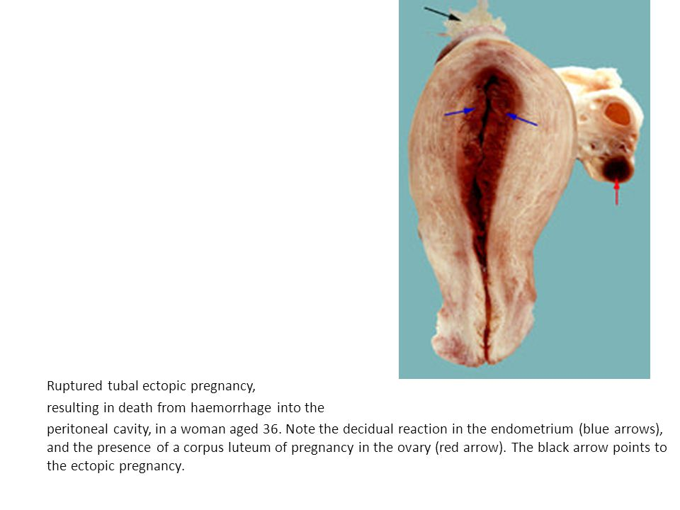 Ruptured tubal ectopic pregnancy, resulting in death from haemorrhage into the peritoneal cavity, in a woman aged 36.