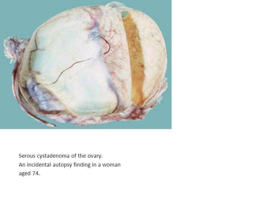 Serous cystadenoma of the ovary