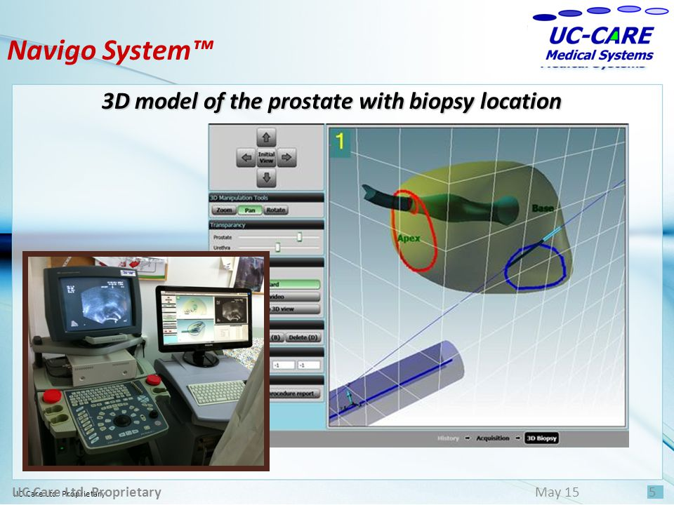 3D model of the prostate with biopsy location UC Care Ltd. Proprietary