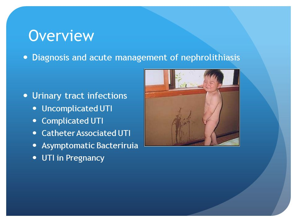 Overview Diagnosis and acute management of nephrolithiasis