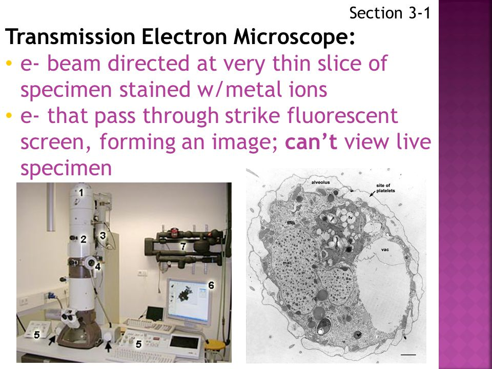 Transmission Electron Microscope: