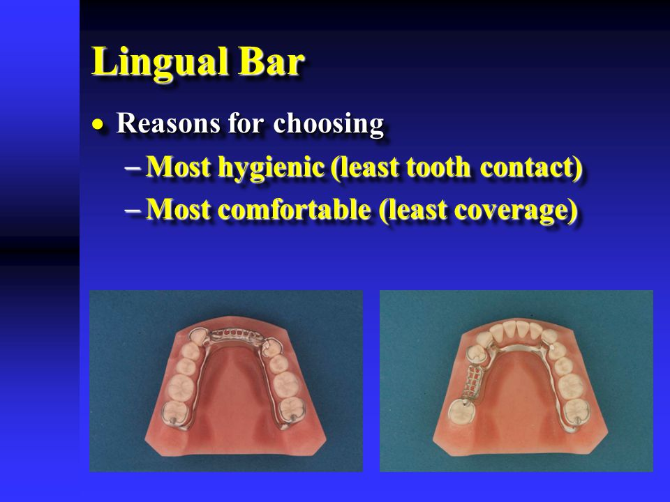 Lingual Bar Reasons for choosing Most hygienic (least tooth contact)