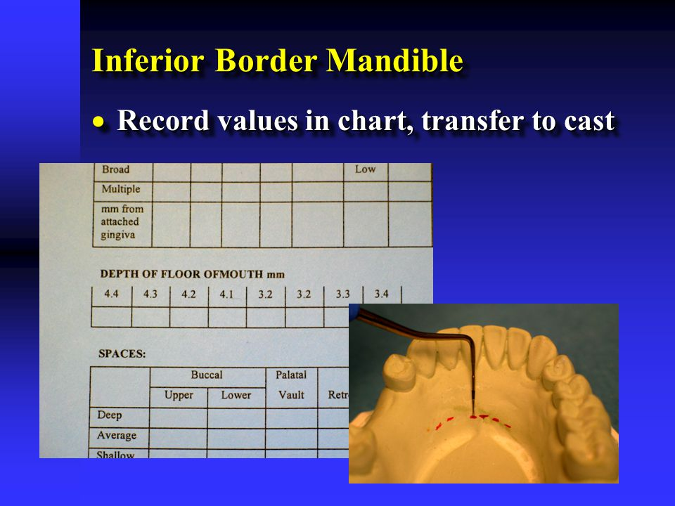 Inferior Border Mandible