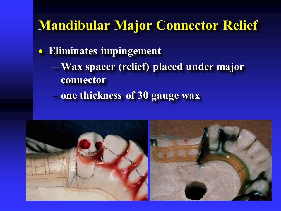 Mandibular Major Connector Relief