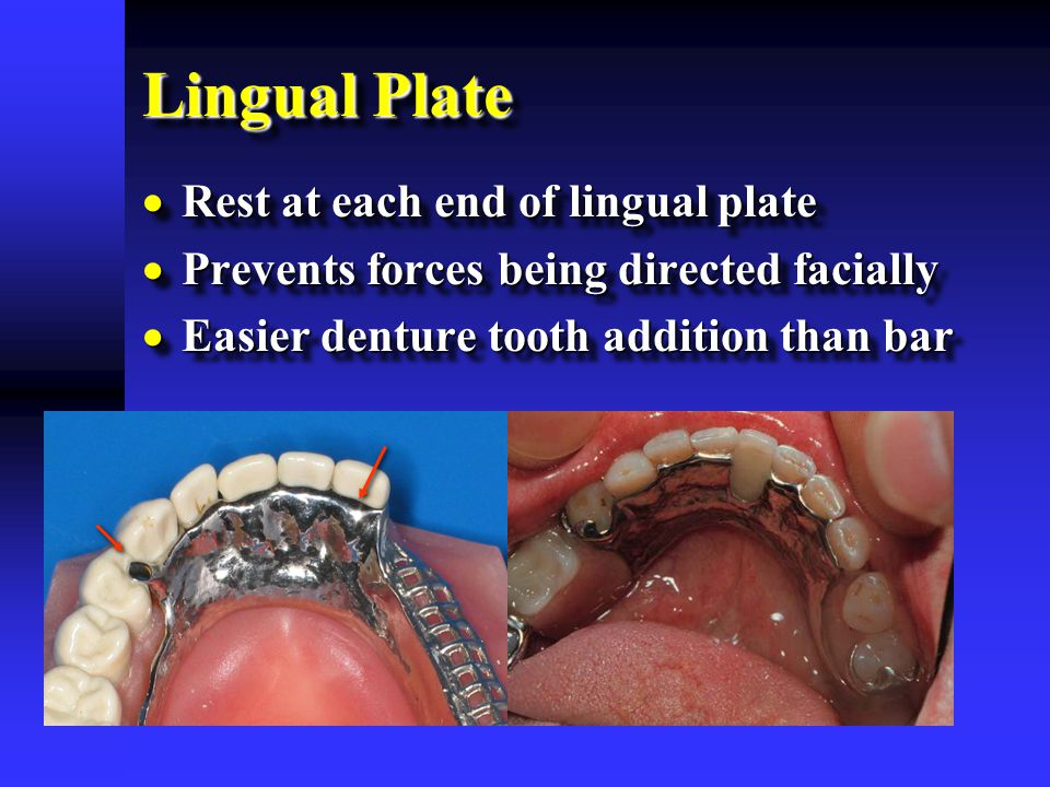 Lingual Plate Rest at each end of lingual plate