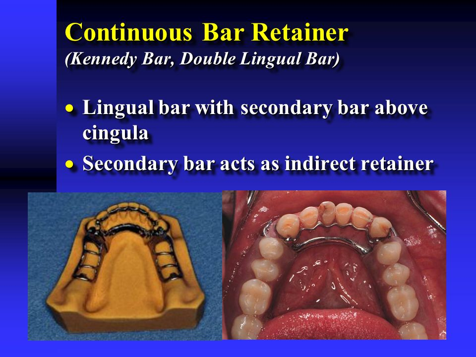 Continuous Bar Retainer (Kennedy Bar, Double Lingual Bar)