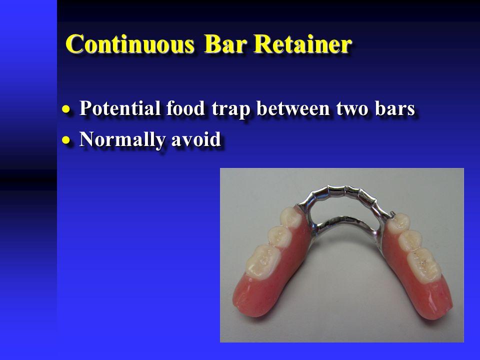 Continuous Bar Retainer