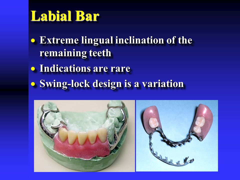 Labial Bar Extreme lingual inclination of the remaining teeth