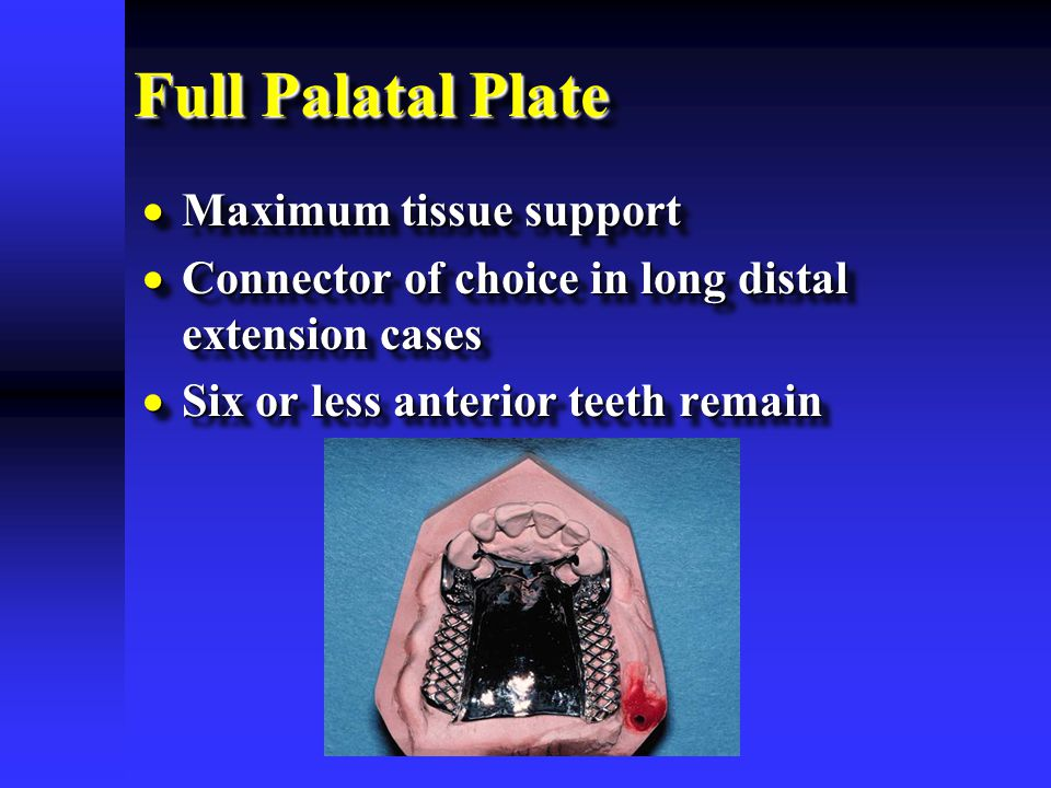Full Palatal Plate Maximum tissue support
