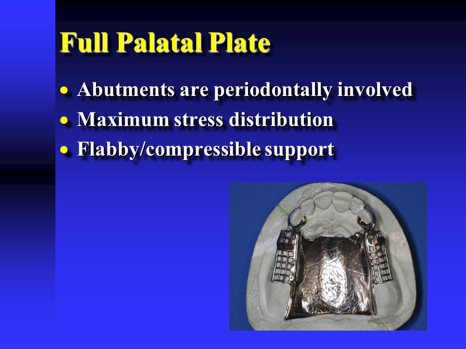Full Palatal Plate Abutments are periodontally involved