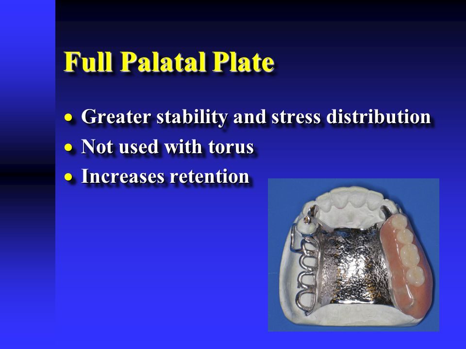 Full Palatal Plate Greater stability and stress distribution
