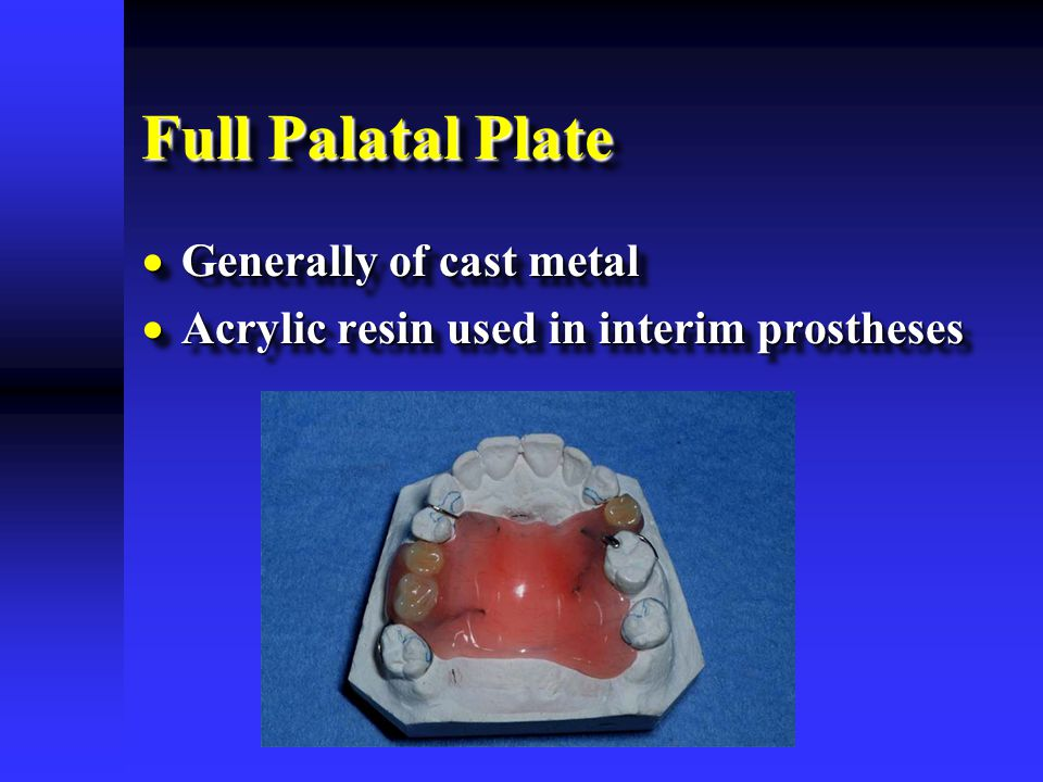 Full Palatal Plate Generally of cast metal