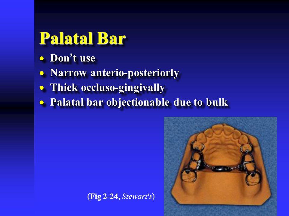 Palatal Bar Don't use Narrow anterio-posteriorly
