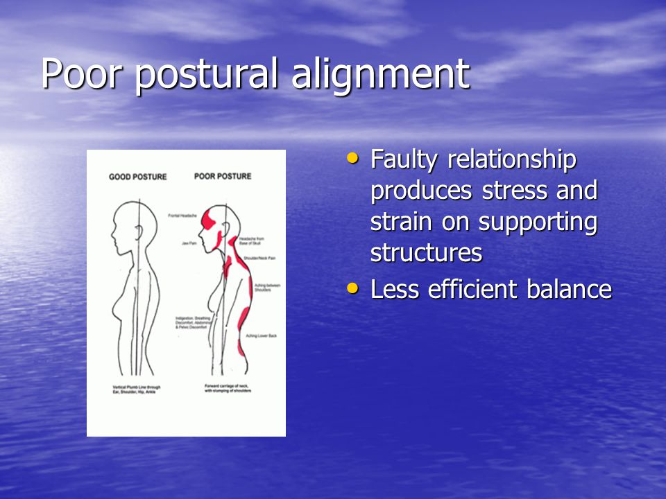 Poor postural alignment