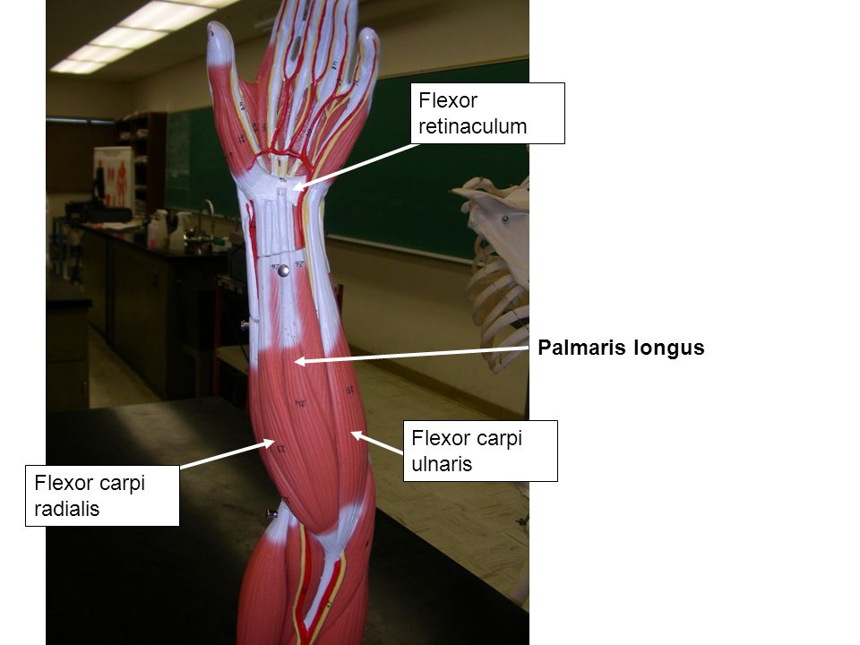 Flexor retinaculum Palmaris longus Flexor carpi ulnaris Flexor carpi radialis