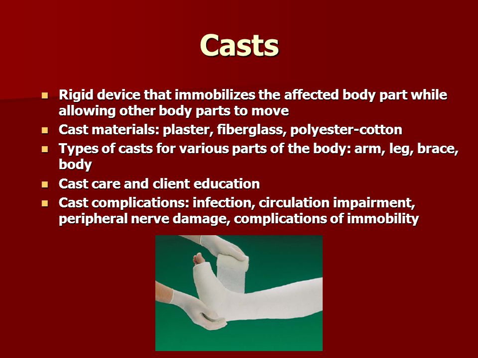 Casts Rigid device that immobilizes the affected body part while allowing other body parts to move.