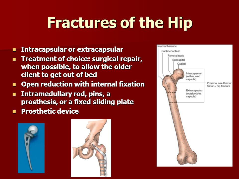 Fractures of the Hip Intracapsular or extracapsular