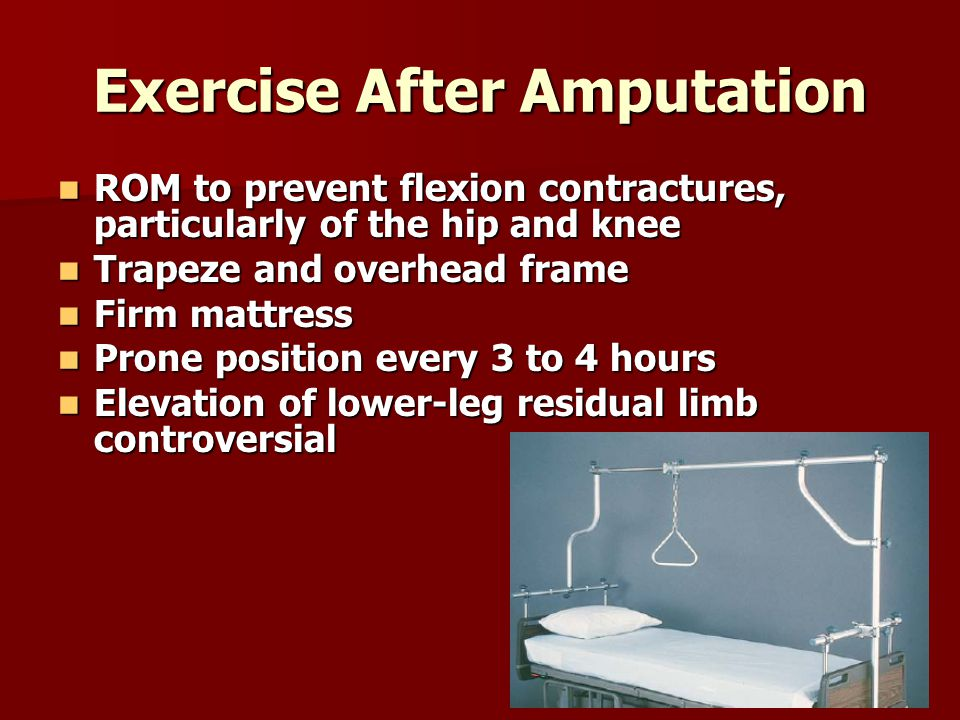 Exercise After Amputation