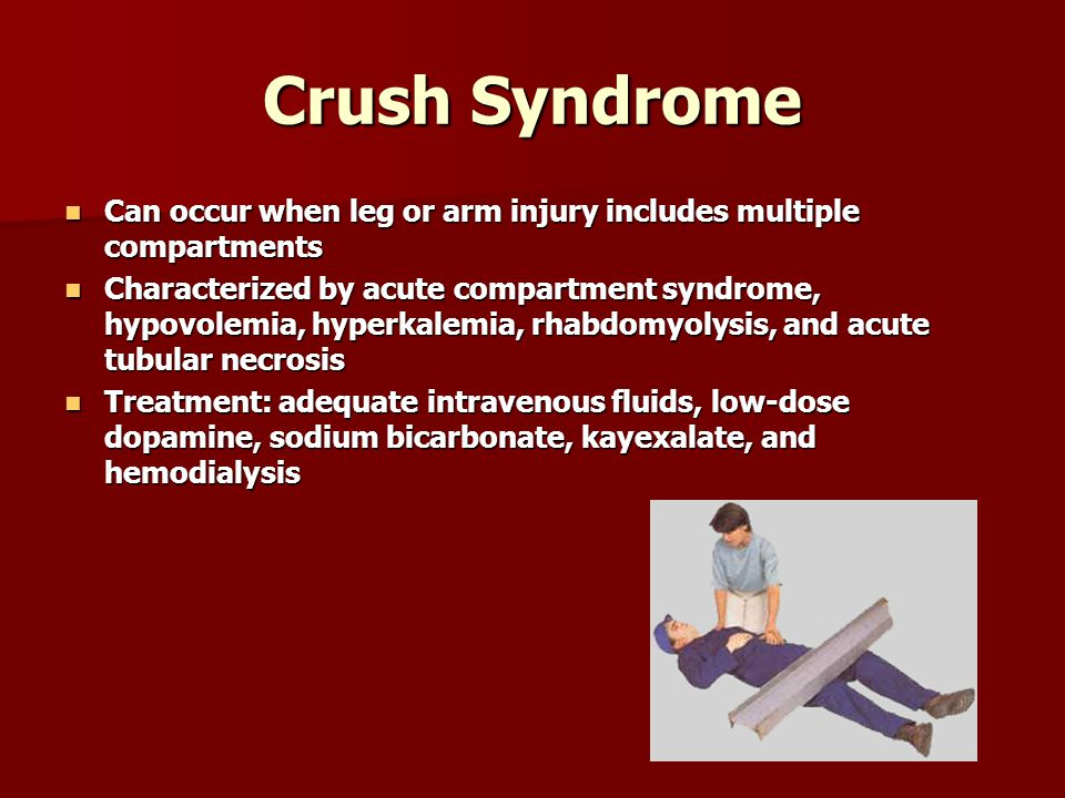 Crush Syndrome Can occur when leg or arm injury includes multiple compartments.