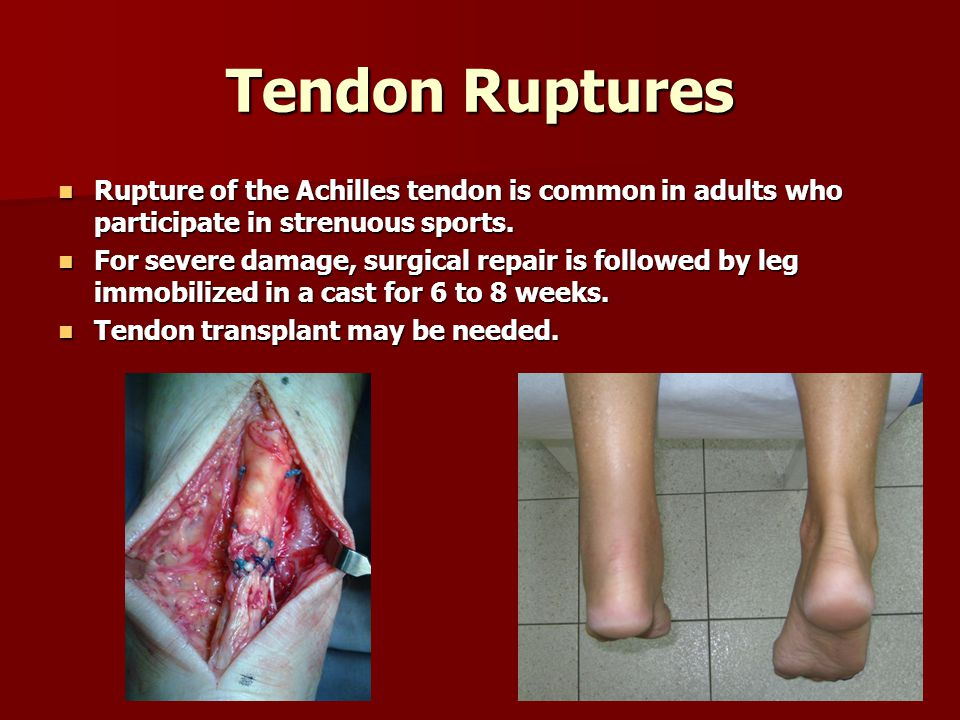 Tendon Ruptures Rupture of the Achilles tendon is common in adults who participate in strenuous sports.