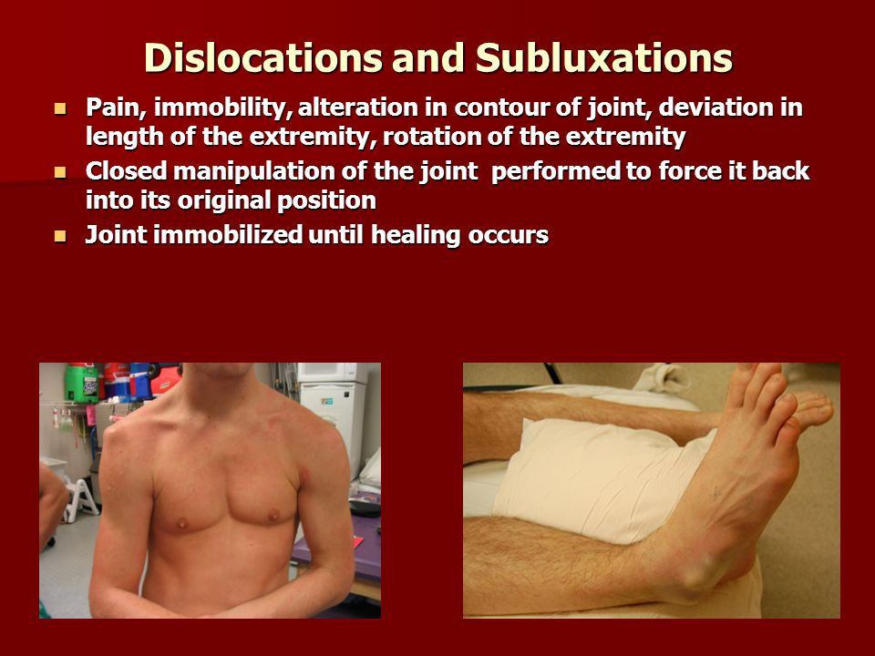 Dislocations and Subluxations