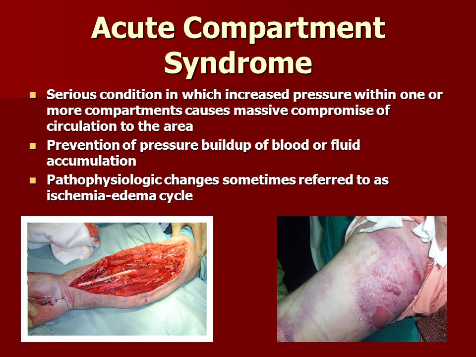 Acute Compartment Syndrome