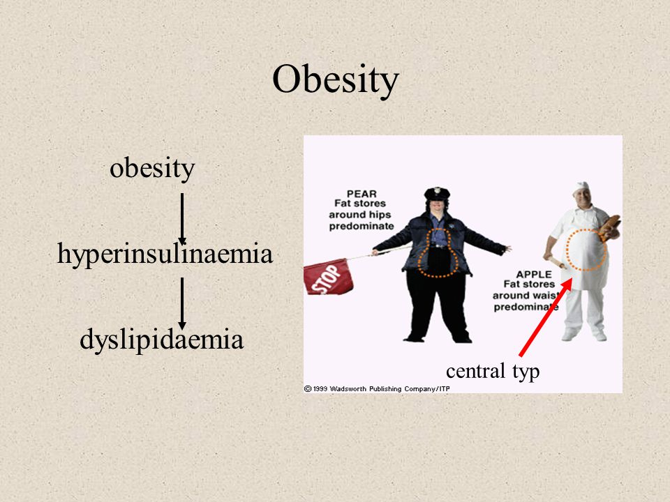 Obesity obesity hyperinsulinaemia dyslipidaemia central typ