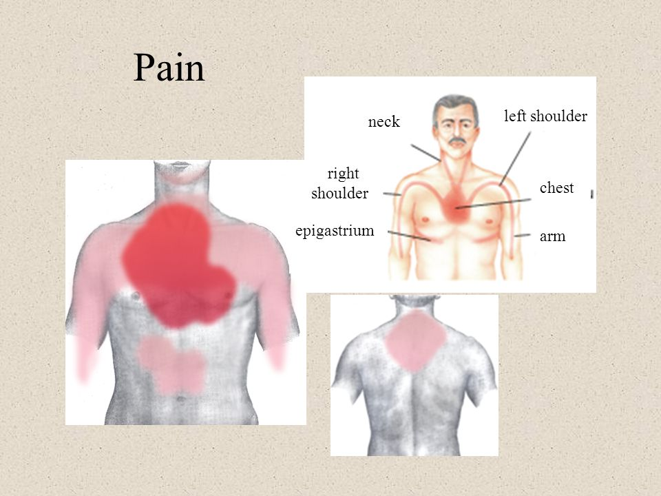 Pain left shoulder neck chest right shoulder epigastrium arm