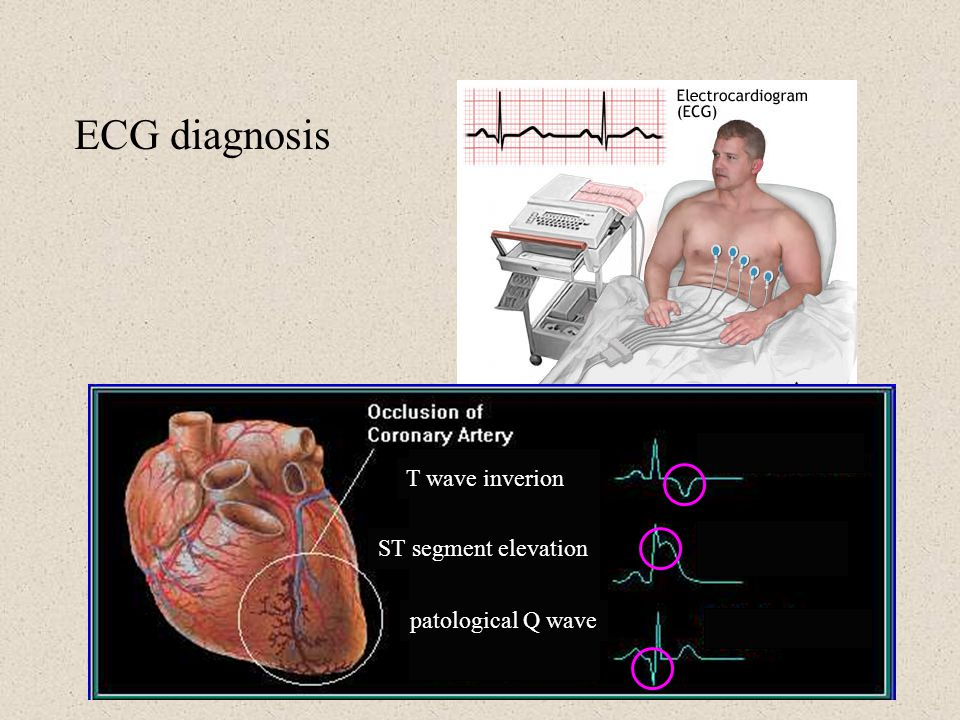 ECG diagnosis T wave inverion ST segment elevation patological Q wave