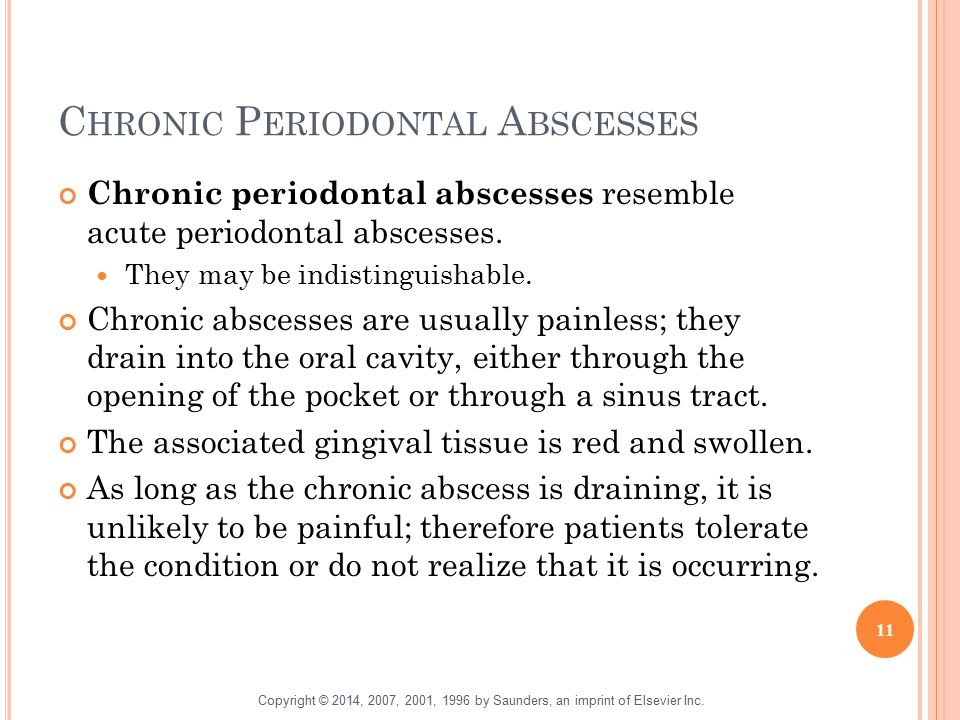 Chronic Periodontal Abscesses