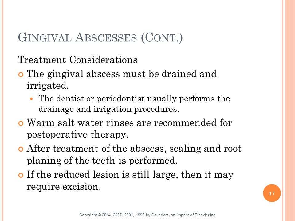 Gingival Abscesses (Cont.)