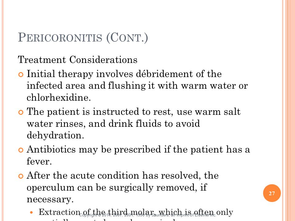 Pericoronitis (Cont.) Treatment Considerations