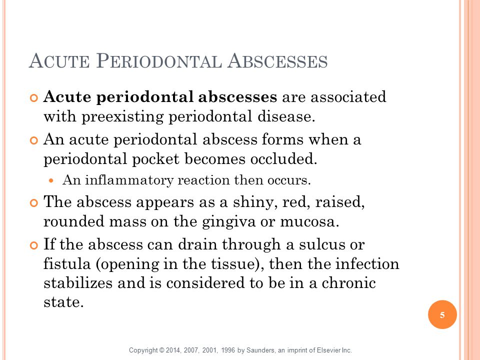 Acute Periodontal Abscesses