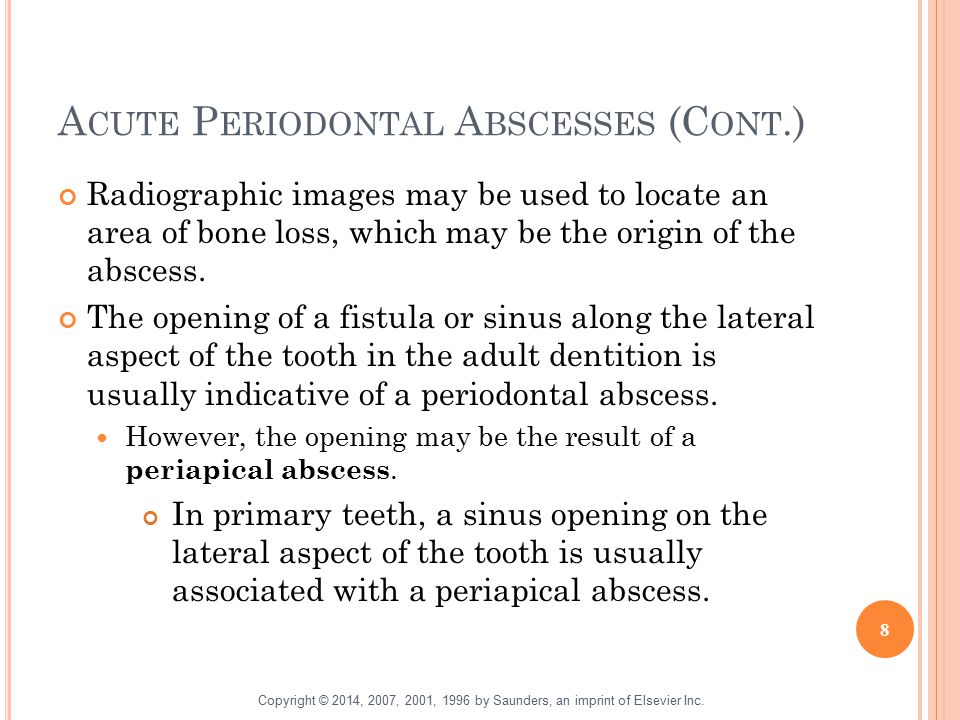 Acute Periodontal Abscesses (Cont.)