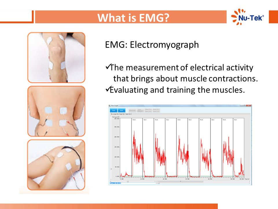 What is EMG EMG: Electromyograph