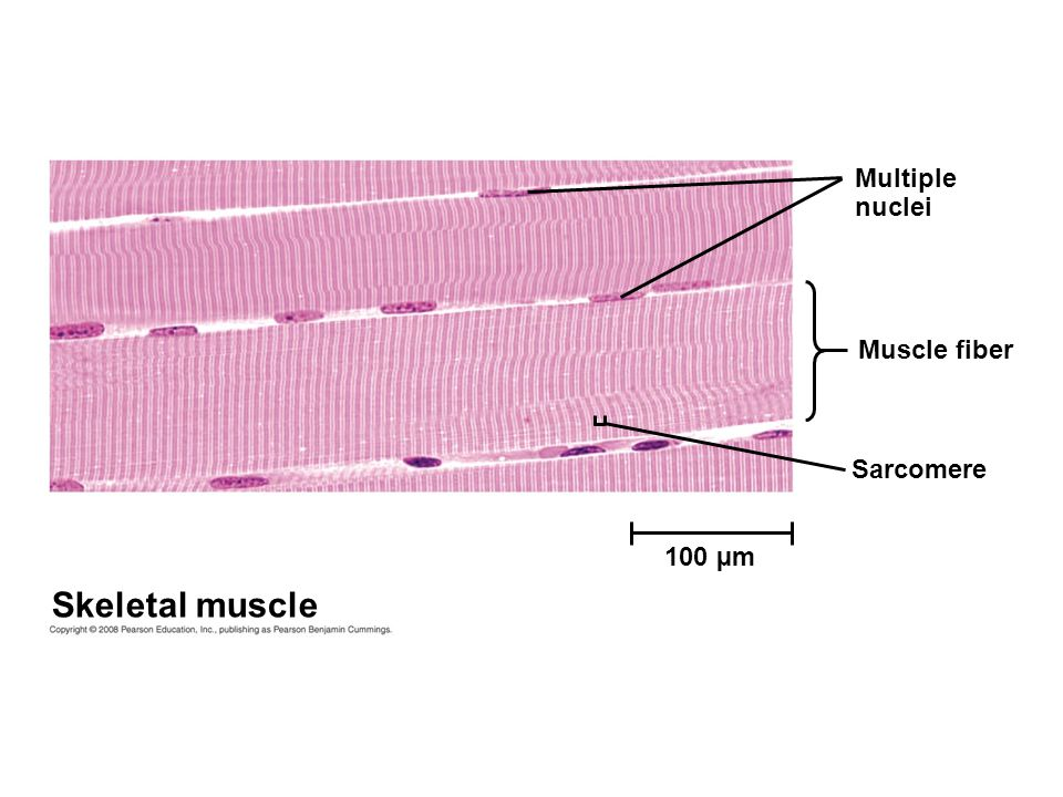 Multiple nuclei Muscle fiber Sarcomere 100 µm Skeletal muscle