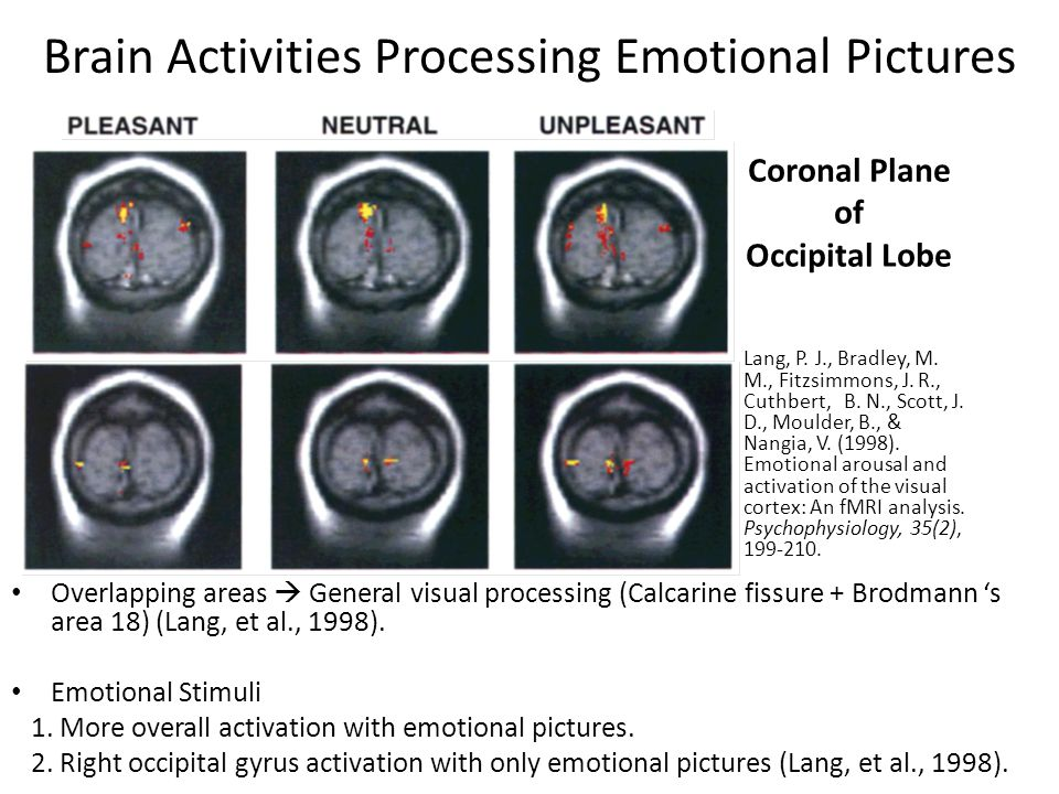 Brain Activities Processing Emotional Pictures