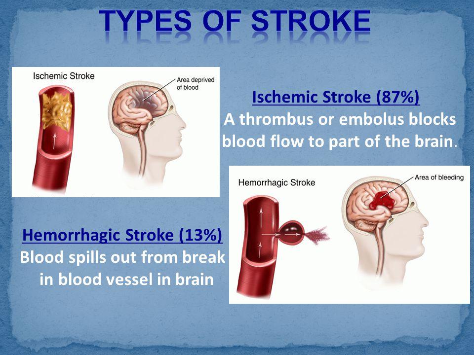 Types of Stroke Ischemic Stroke (87%) A thrombus or embolus blocks