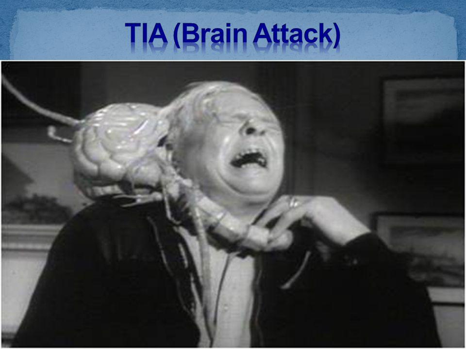 TIA (Brain Attack)