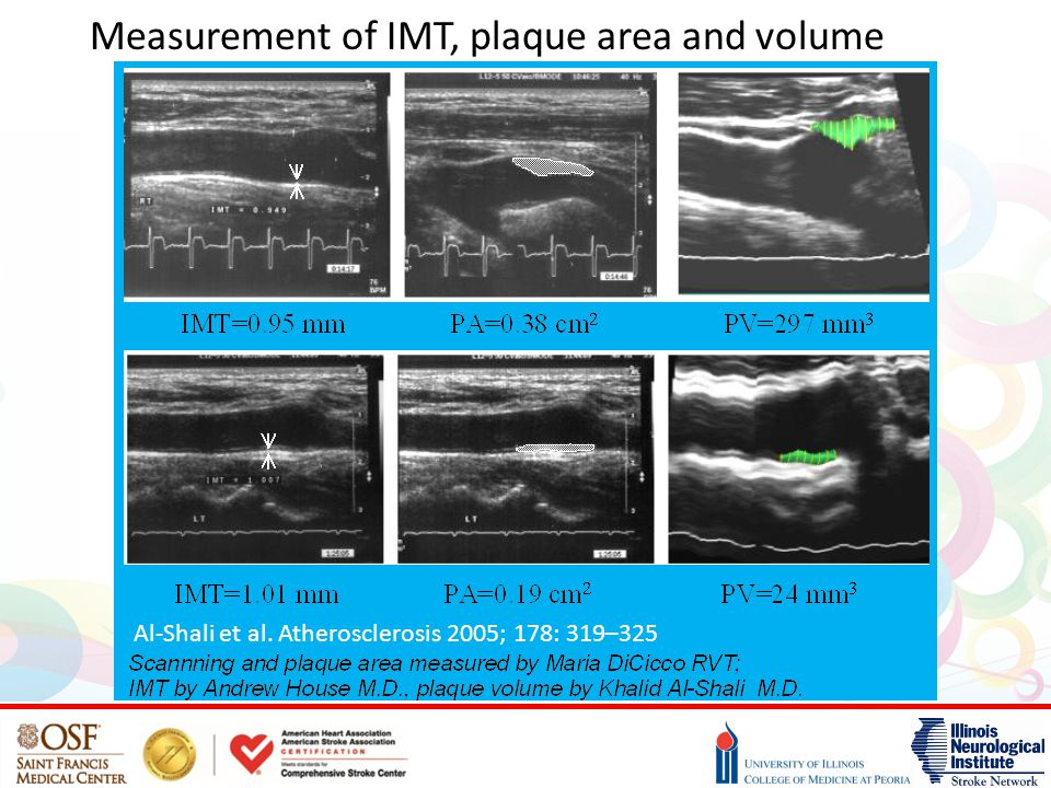 Measurement of IMT, plaque area and volume